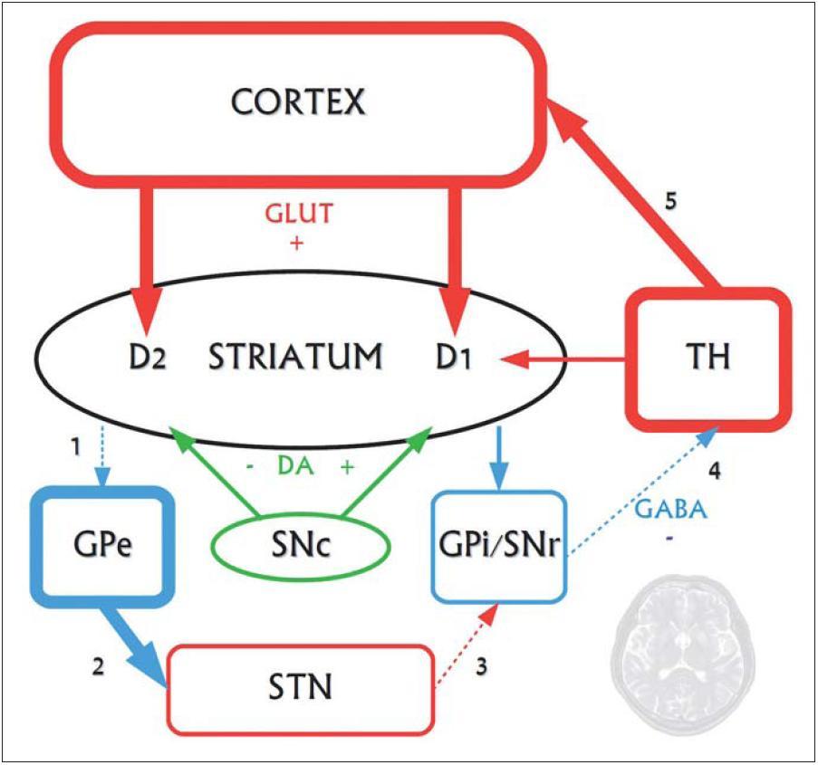 Funkčné zmeny postihujúce nepriamu striato-pallidálnu dráhu vo včasných fázach Huntingtonovej choroby. Na neurodegeneráciu sú najvulnerabilnejšie GABAergické stredné ostnaté neuróny nepriamej dráhy, degenerujú ako prvé. Priama dráha ostáva dlhší čas relatívne funkčne zachovaná. Zvyšuje sa glutamátergické excitačné pôsobenie, pričom v rámci patogenézy ochorenia je glutamátom sprostredkovaná excitotoxicita jedným z neurodegeneratívnych činiteľov.  1 – v dôsledku degenerácie GABAergických enkefalínergických neurónov nepriamej dráhy sa znižuje ich inhibičné pôsobenie na GPe. 2 – GPe sa dezinhibuje a prílišne tlmí STN, ktoré tak insuficientne excituje výstupné jadrá bazálnych ganglií (3). 4 – GPi/STr tak dostatočne netlmia thalamus a 5 – nastáva hyperaktivita thalamokortikálnych spojov, spôsobujúca choreu. Až v ďalšej progresii ochorenia degenerujú aj neuróny zapojené do priamej dráhy (tieto zmeny nie sú zakreslené), čoho dôsledkom je utlmenie dovtedy hyperaktívnych thalamokortikálnych spojov. Klinickým prejavom tohto procesu je redukcia až vymiznutie chorey, s postupným objavovaním sa dystónie až akineticko-rigidného syndrómu.