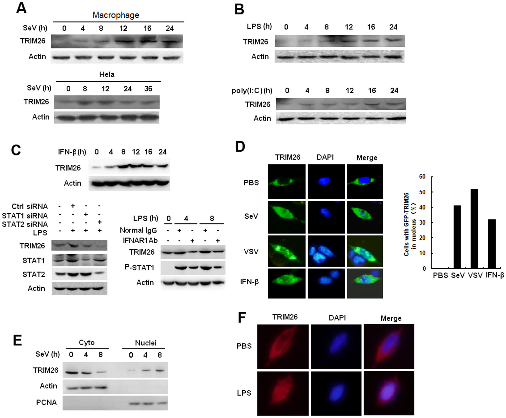 Virus infection induces TRIM26 expression and nuclear translocation.