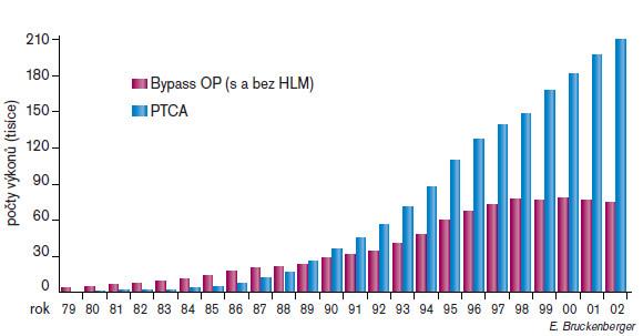 Počty revaskularizací pomocí CABG a PCI provedených v Evropě za posledních 20 let.