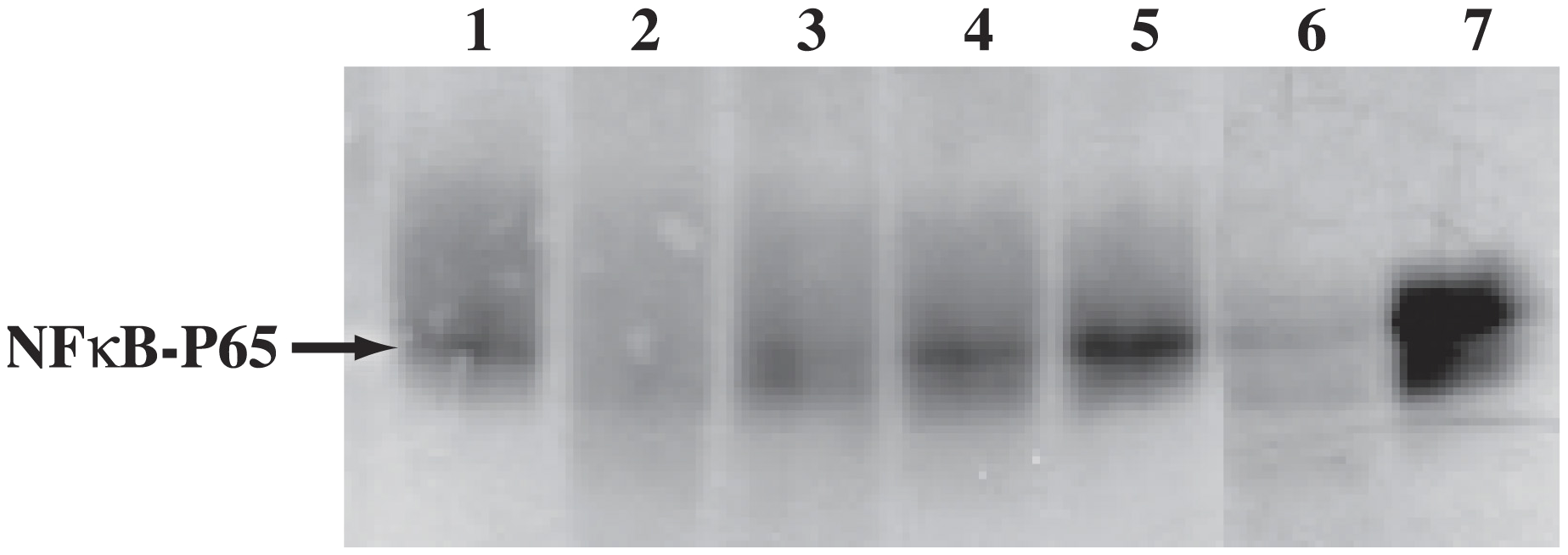 Proteolytic cleavage of r-human NF-κB P65 by wild type- and r-cruzain but not by proteases expressed by cruzain-deficient <i>T. cruzi.</i>