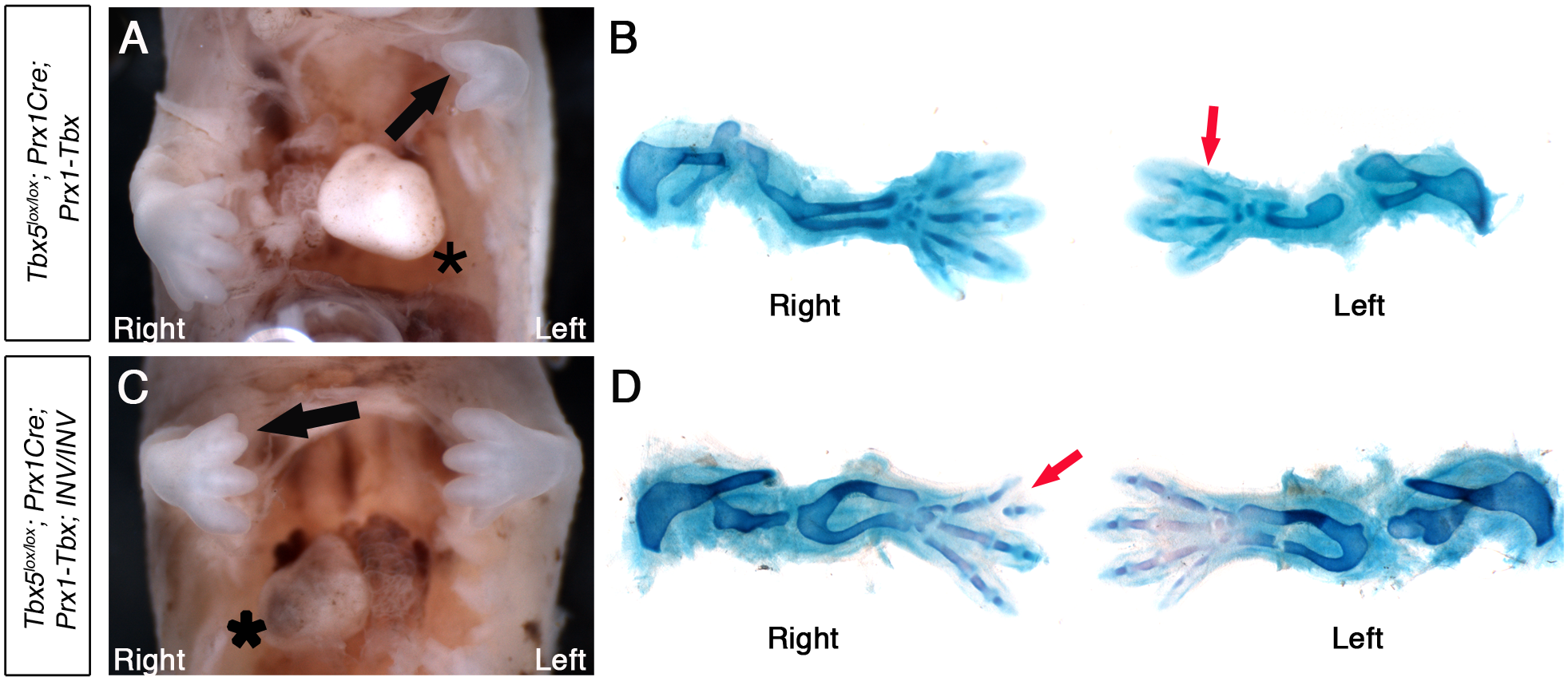 <i>Tbx5</i><sup><i>lox/lox</i></sup><i>;Prx1Cre;Prx1-Tbx;INV/INV</i> mutants with <i>situs inversus</i> have right biased asymmetric forelimb defects.