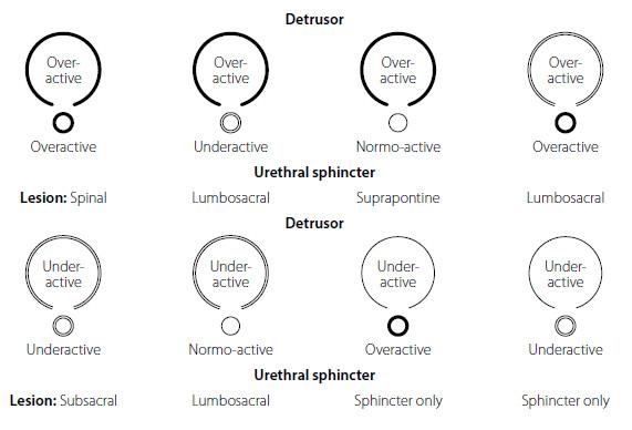 Madersbacherova klasifikace neurogenní dysfunkce dolních cest močových v závislosti od úrovně léze CNS, převzato z www.uroweb.org (13, 14) Fig. 2. The EAU – Madersbacher classification systém of neurogenic lower urinary tract dysfunction from www.uroweb.org (13, 14)