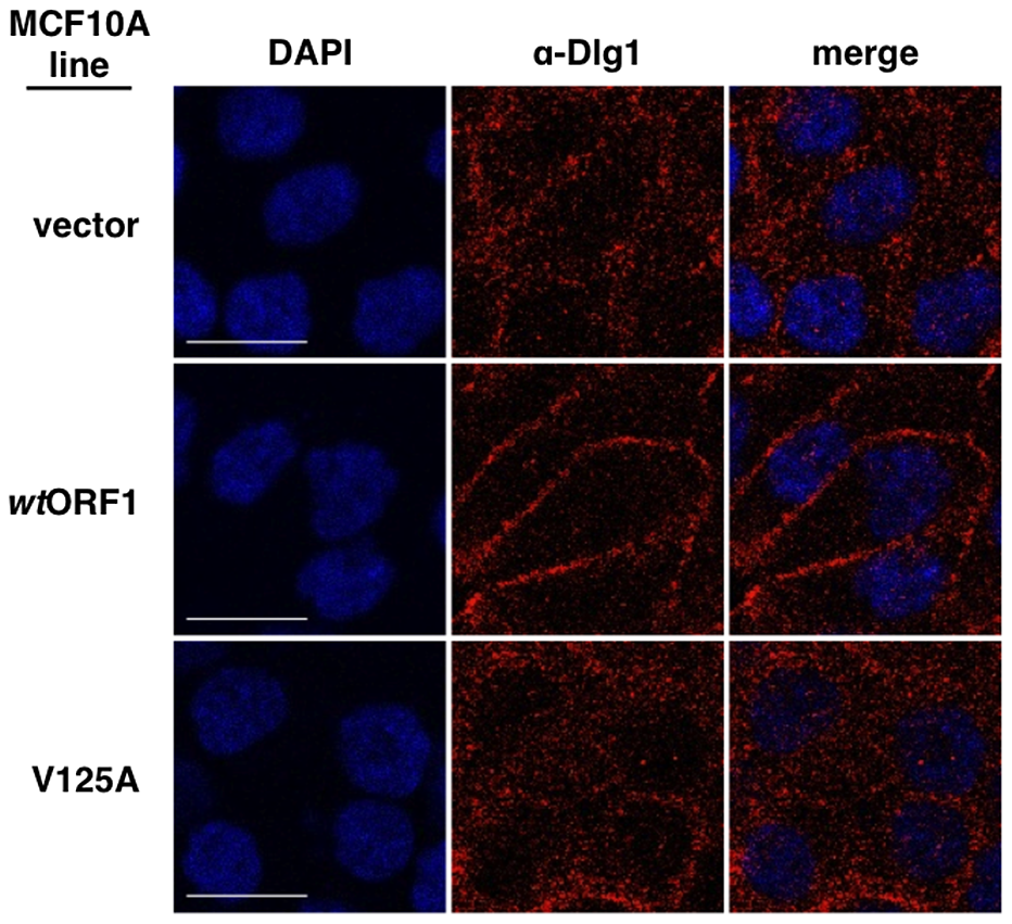 E4-ORF1 promotes translocation of cytoplasmic Dlg1 to the plasma membrane.