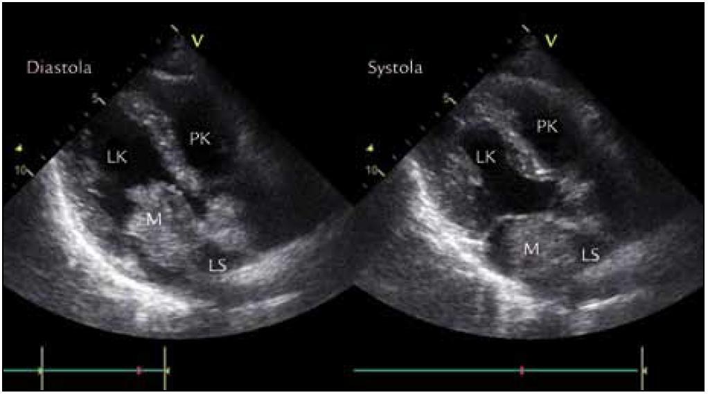 Echokardiografické zobrazení myxomu v PSAX (parasternální projekce na dlouhou osu) v diastole a systole.