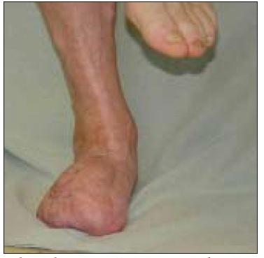Obr. 8b. Tentýž pacient rok po výkonu (jednodobý nonreverzní popliteo-ADP-bypass a m. rectus abdominis). Stabilní monopedální stoj.