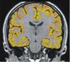 Měření mozkové atrofie pomocí programu SIENA.