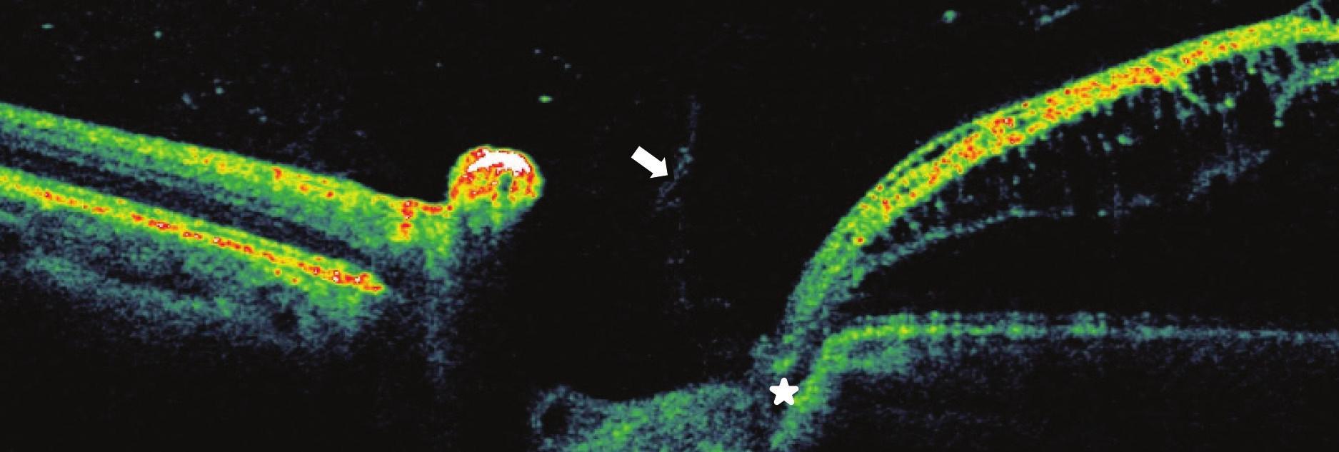 Pacient č. 4 Lineární horizontální transpapilární OCT scan OL, interpapilární proliferace (šipka), zachycena komunikace jamky terče s makulární retinoschízou zevní vrstvy sítnice RSE*