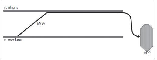 MGA typu III – vlákna n. medianus inervují mediální tenar (m. adductor pollicis – ADP – a caput profundum m. flexor pollicis brevis). Fig. 8. MGA type III – fibers of the median nerve innervate medial tenar (m. adductor pollicis – ADP and caput profundum m. flexor pollicis brevis).