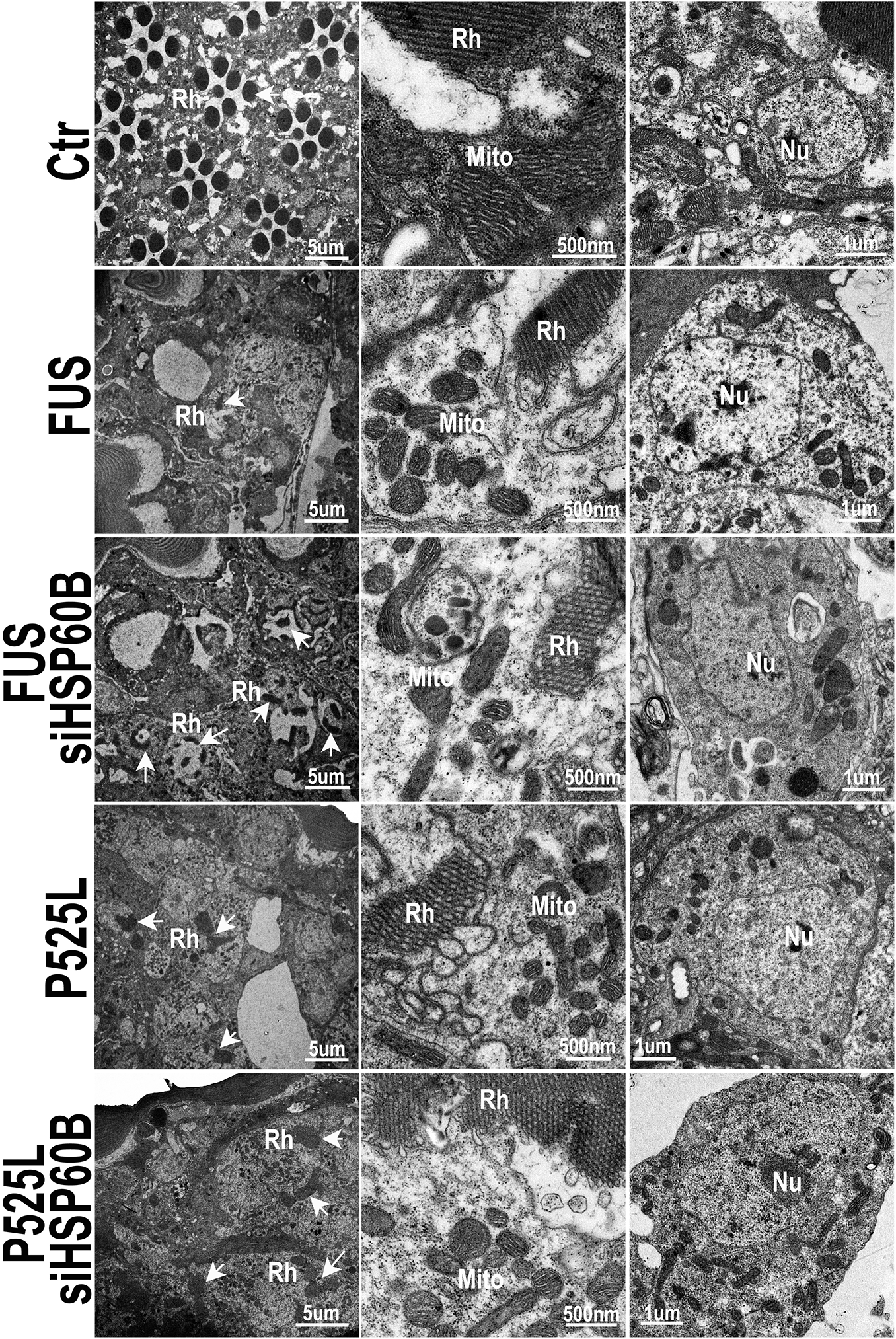Down-regulating HSP60B in fly photoreceptors partially rescues the retinal degeneration phenotype of FUS transgenic mice as shown by transmission electron microscopy (TEM).