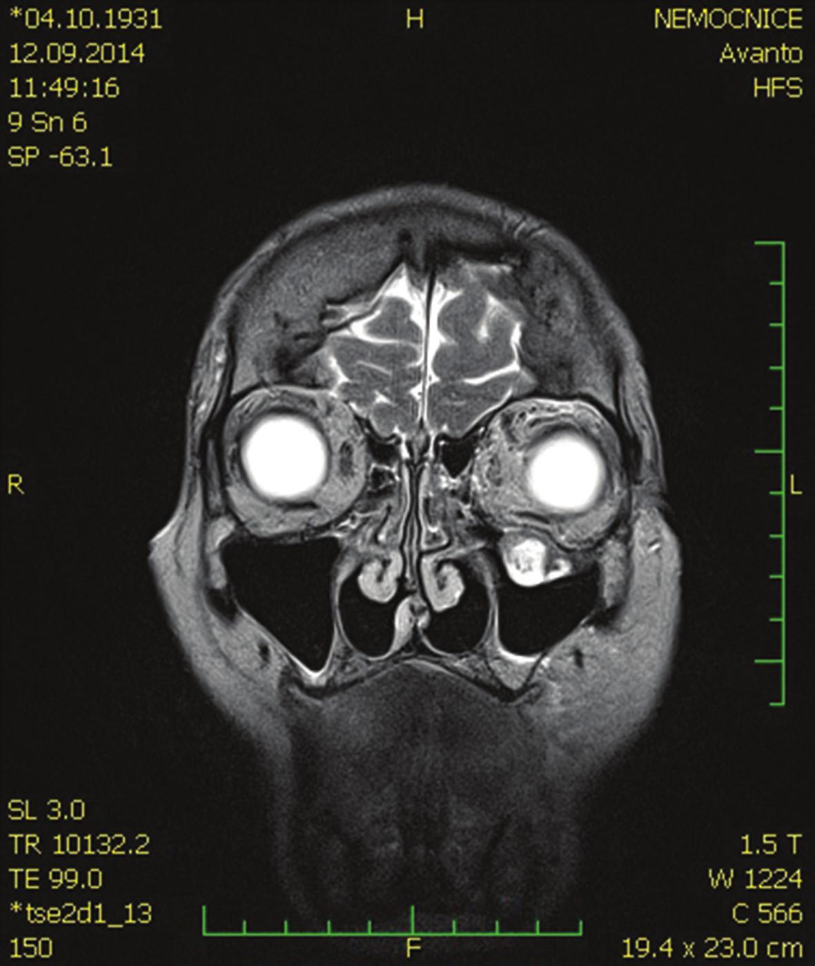 MR hlavy – koronární řez