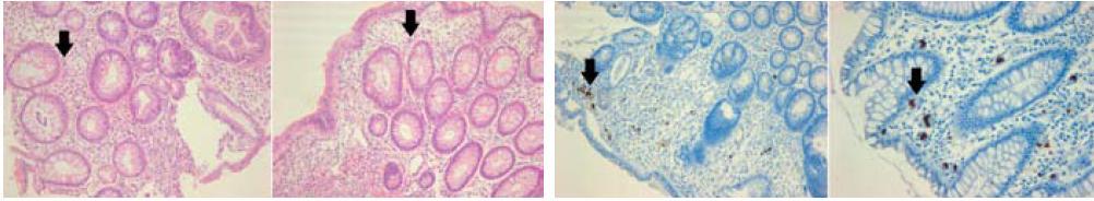 """Histologický obraz CMV kolitidy: vlevo – v barvení hematoxylin-eosinem, vpravo – imunohistochemický průkaz CMV (immediate early antigen CMV). Šipky označují typické """"megalocyty"""" s inkluzemi. Fig. 1. Histological depiction of CMV colitis: left – coloured haematoxylin-eosin, right – immunohistochemical CMV mark (immediate early antigen CMV). Arrows indicate typical 'megalocytes' with inclusions."""