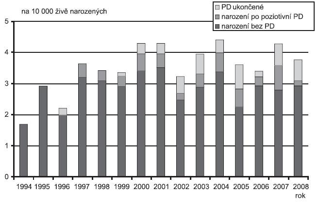 Incidence Fallotovy tetralogie (Q 21.3) v ČR, 1994 - 2008, Zdroj: Národní registr vrozených vad – ÚZIS, 2009