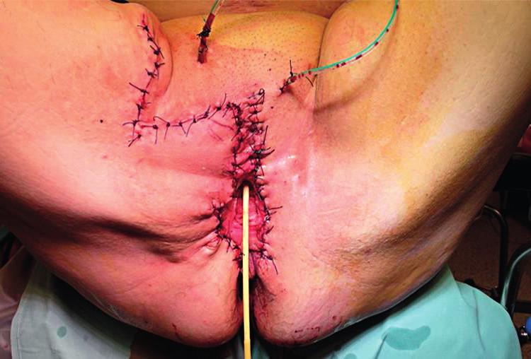Konečný stav po sutuře vzniklého defektu (po uvolnění a posunu kožního laloku vpravo)