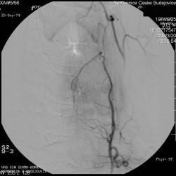 Obr. 3b. Selektivní angiografie po uzavření vyživující tepny spirálkou. Terčík se nesytí.