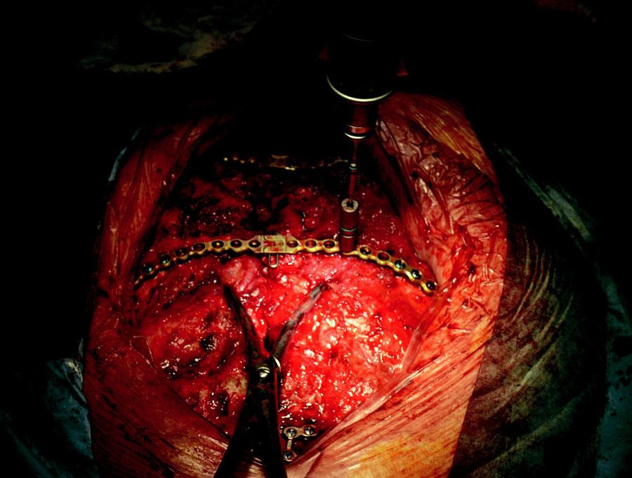 Implantace dlah – předvrtání otvorů