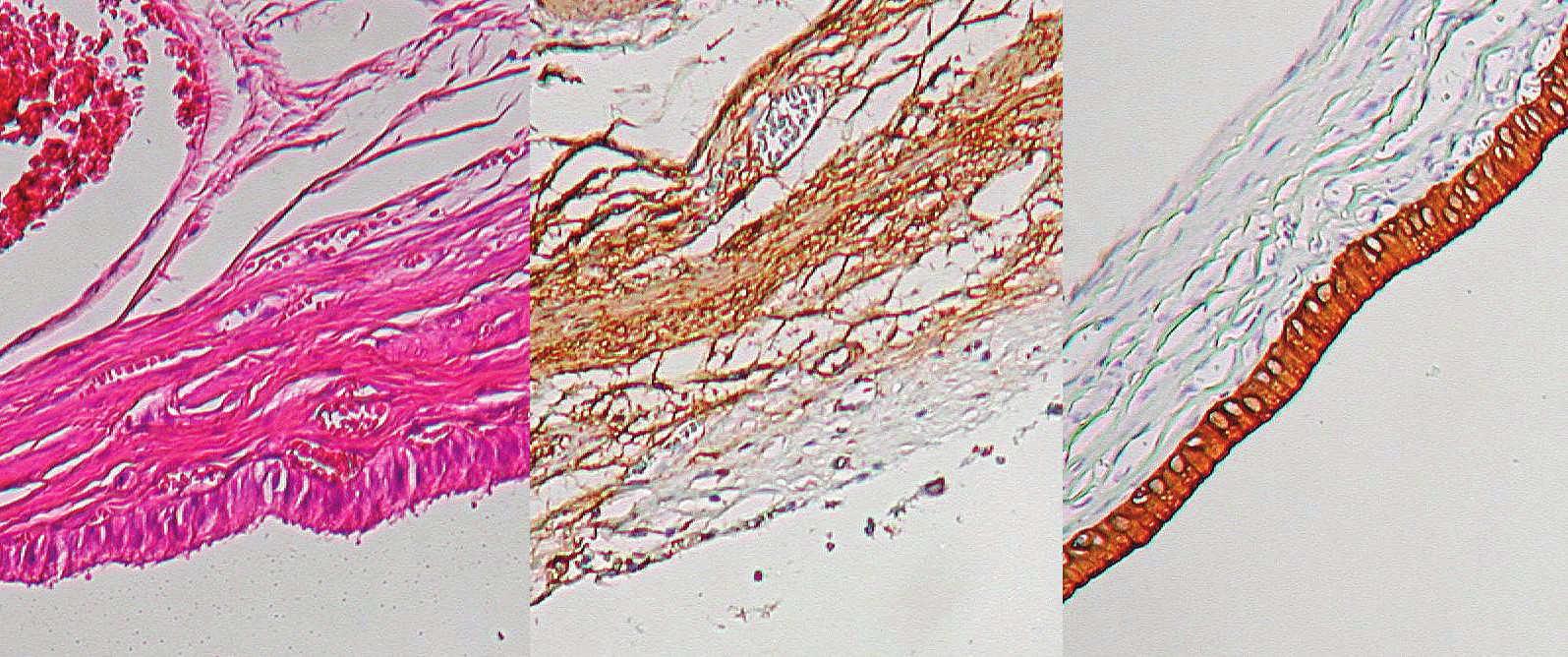 Histologický nález – žlčník, zľava normálne farbenie, v strede svalovina znázornená protilátkami proti aktínu, vpravo epitel žlčových ciest znázornený protilátkami proti cytokeratínu C19 Fig. 7. Histological preparation – gall-bladder: normal staining on the left, muscle layer stained with monoclonal antibodies against actin in the middle, biliary epithelium stained with antibodies against cytokeratin C19 on the right