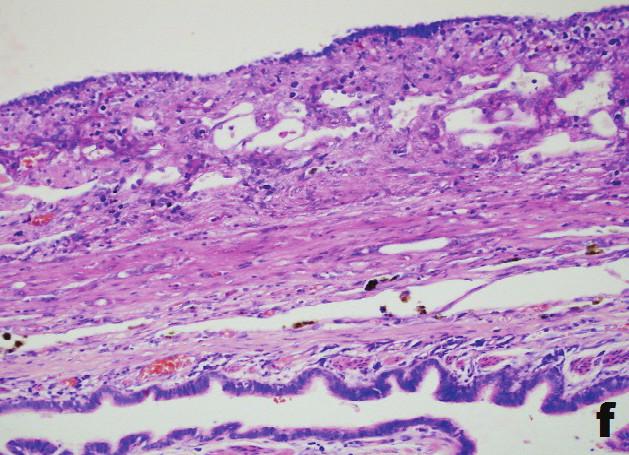 f) Paralelne uložený drobný bronchus, nevýrazná fokálna chronická zápalová celulizácia a nepravidelný epiteliálny kryt. (Giemsa; obj. 20x) f) Parallely placed small bronchus, weak focal chronic inflammatory cellularization and irregular epithelial cover (Giemsa; obj. 20x) Obr. 5: Histológia Fig. 5: Histology