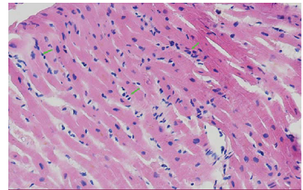 Histologický vzorek myokardu s disperzními proužky rejekční celulizace (rejekce grade 1R) v barvení hematoxylin – eosin.
