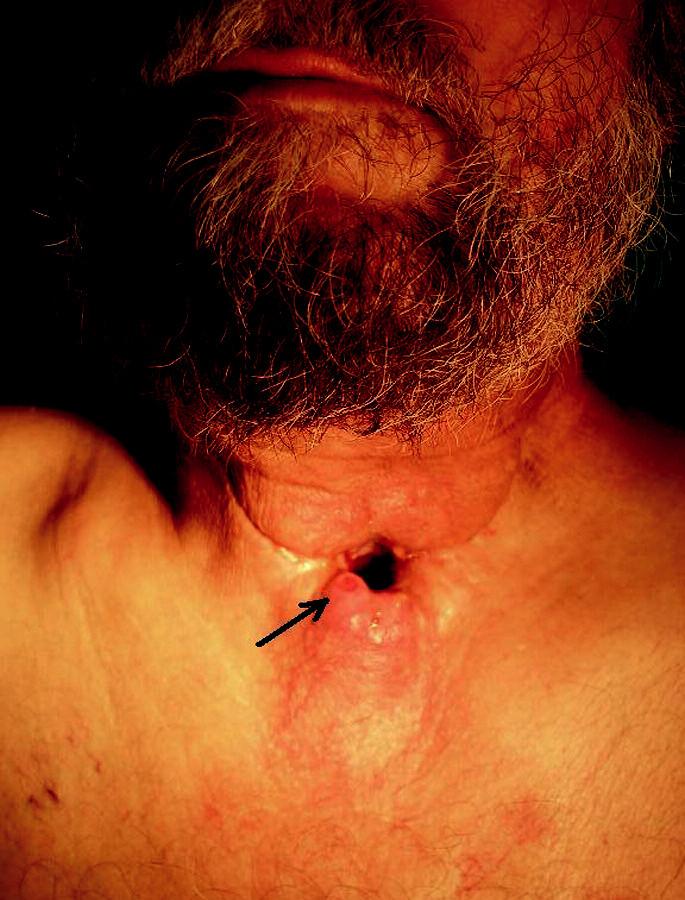 Paratracheostomická rekurence (šipka) u pacienta 9 měsíců po chirurgické léčbě a adjuvantní chemoradioterapii pro laryngofaryngeální spinocelulární karcinom.