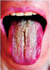 Prechod patologicko-zmnoženého povlaku do žltých nakopenin filiformných papíl, z ktorých v strednej ryhe tela jazyka sa diferencuje linqua vilosa žltej farby (Timková)