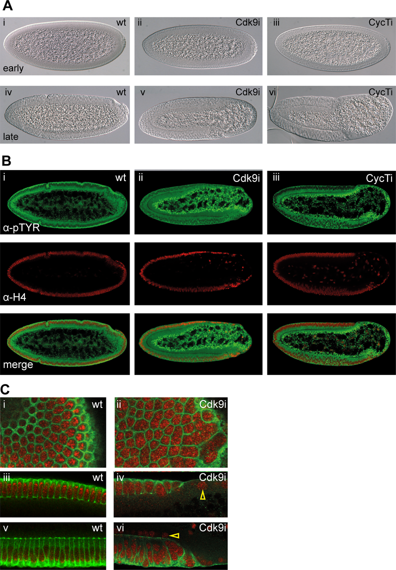 P-TEFb embryos show cellularization defects and lose cells in the embryo posterior.