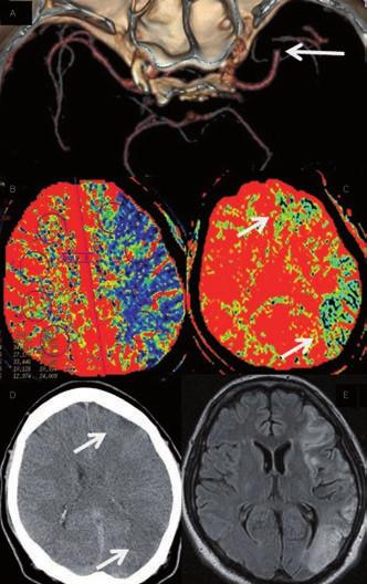 Akutní okluze ACM vlevo. A – CTA s okluzí ACM vlevo, B – prodloužení CBF v povodí ACM vlevo nastavené k určení penumbry, C – oblasti s poklesem CBV nastaveným k určení jádra infarktu. Krátce po zahájení IV trombolýzy došlo k plné rekanalizaci tepny. Na obrázku D a E rozsah ischemie na CT a MR koreluje s výpadky v CBV mapě (jádrem infarktu) při vstupním vyšetření. Ostatní ohrožená tkáň byla časnou rekanalizací zachráněna.