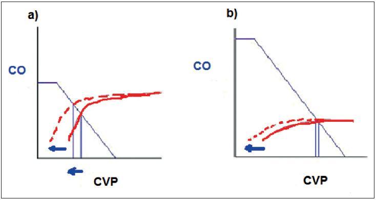 Srdeční funkční křivka Vztah mezi srdečním výdejem – CO a centrálním žilním tlakem – CVP