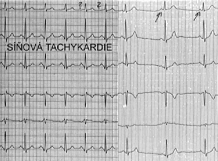 Síňová tachykardie. V prvních 6 QRS-komplexech běží síňová tachykardie, poslední 3 QRS-komplexy představují sinusový rytmus. Morfologie P-vln při tachykardii se liší od morfologie P-vln při sinusovém rytmu prakticky jen ve svodu I, nicméně to stačí k diagnostice síňové tachykardie s vyloučením možnosti sinusové tachykardie.