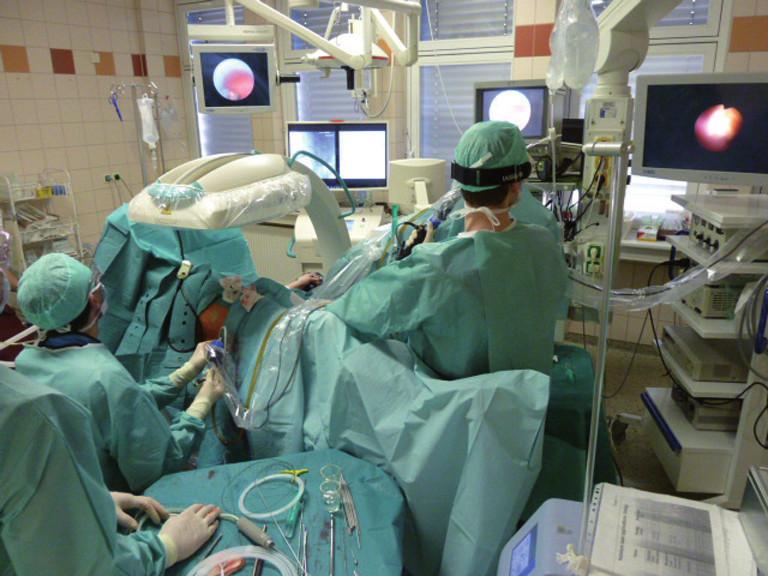 Kombinovaný intrarenální přístup – ECIRS (flexibilní ureterorenoskopie + perkutánní nefrolitotrypse) – na operačním sále Fig. 2. Combined intrarenal approach – ECIRS (flexible ureterorenoscopy + percutaneous nephrolithotripsy) – at the operating theatre