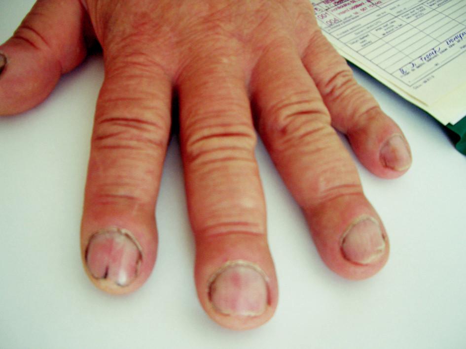 Paličkovité prsty levé ruky