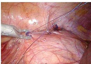 Peritoneum je uzavíráno pokračujícím polyglaktinovým stehem kotveným pomocí PDS klipů Fig. 7. Peritoneum is closed with running suture (polyglactine) anchored with PDS clips