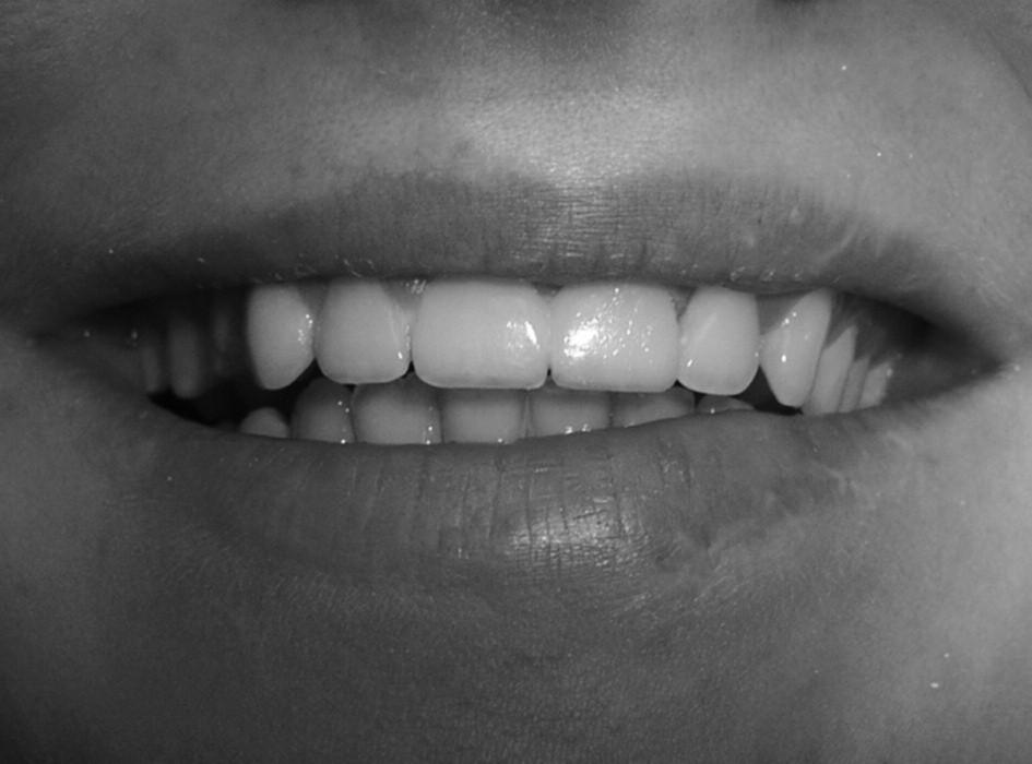 Při úsměvu.