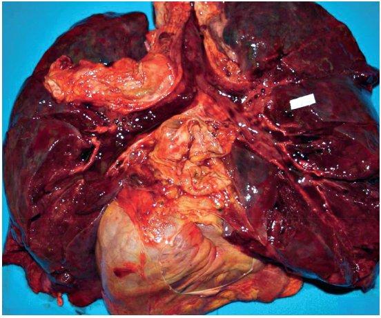 Sekční nález plic