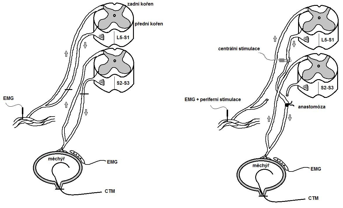 Schéma remodelace mikčního reflexního oblouku Fig. 2. Scheme of artieficial skin-CNS-bladder pathway