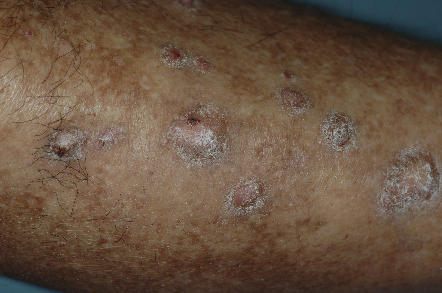 Polygonal, Flat-Topped Papules Covered with a Fine Network of White Lines on the Legs, Consistent with the Diagnosis of Lichen Planus