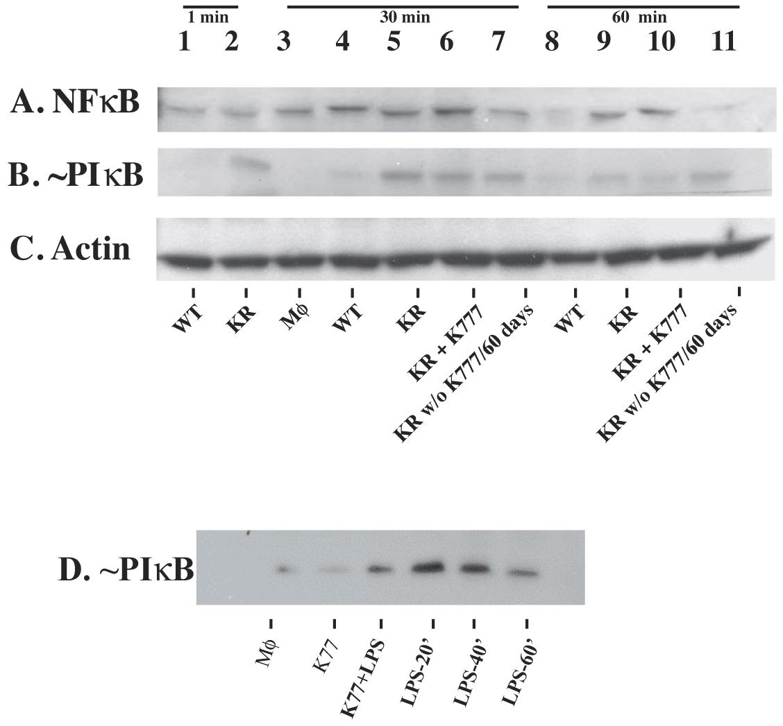 Cruzain-deficient (KR) but not WT parasites activate NF-κB.