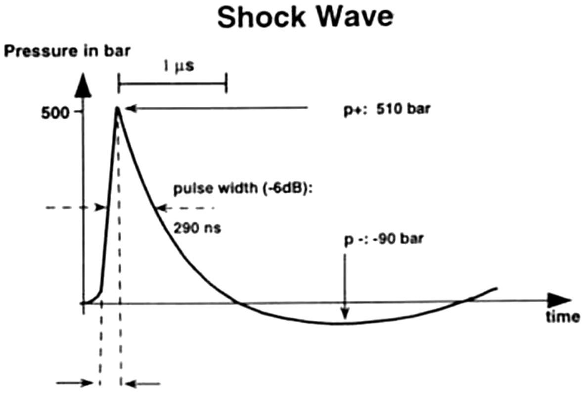 Průběh rázové vlny v čase. Je charakterizována prudkým nárůstem tlaku /p/ s následným pozvolným poklesem s dosažením záporných hodnot p.V této fázi dochází k typickému fyzikálnímu jevu - tzv. kavitaci.