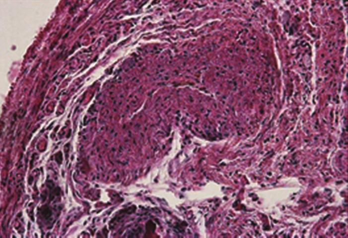 Histologický preparát uzávěru žíly po 4 týdnech laserem Fig. 2: Histology specimen following the vein closure after 4 weeks of laser therapy