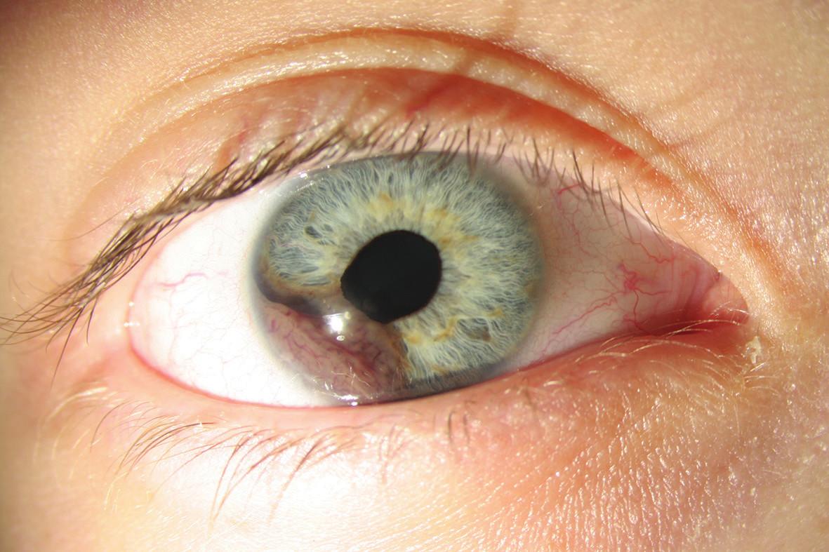 Melanom duhovky pravého oka před operací