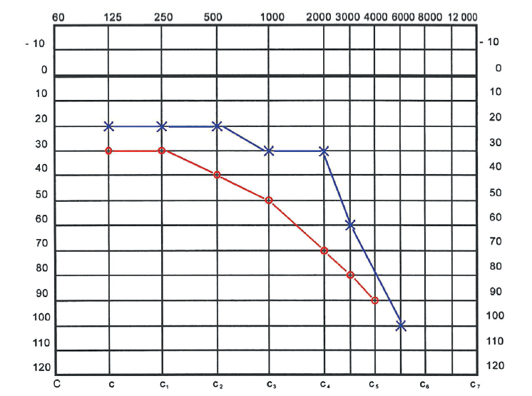 Audiogram při první hospitalizaci. Oboustranná percepční nedoslýchavost, vlevo středně těžká, vpravo těžká.