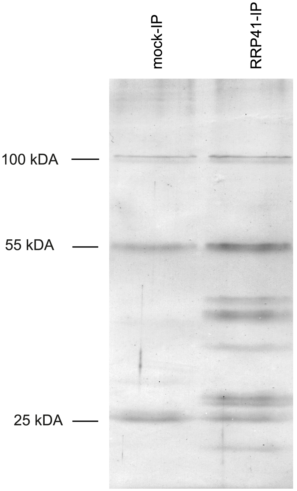 Purification of exosome complexes.