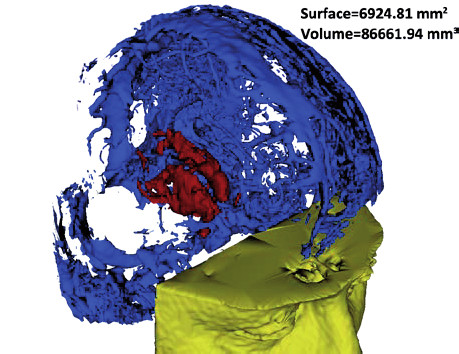 Fig. 4: 3D model of the brain tissue. Brain vessels are blue, region with impaired BBB detected by our software is depicted in red color. Surface and volume of lesion can be calculated for comparison with other prospective measurements.