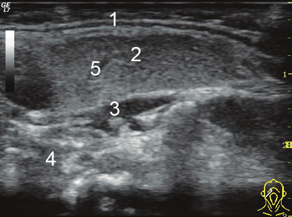 Podélný UZ obraz pravostranné fyziologické podčelistní slinné žlázy (1. odraz od povrchu gl. submandibularis, 2. parenchym žlázy, 3. svaly spodiny ústní dutiny, 4. gl. sublingualis, 5. a. facialis procházející parenchymem žlázy).