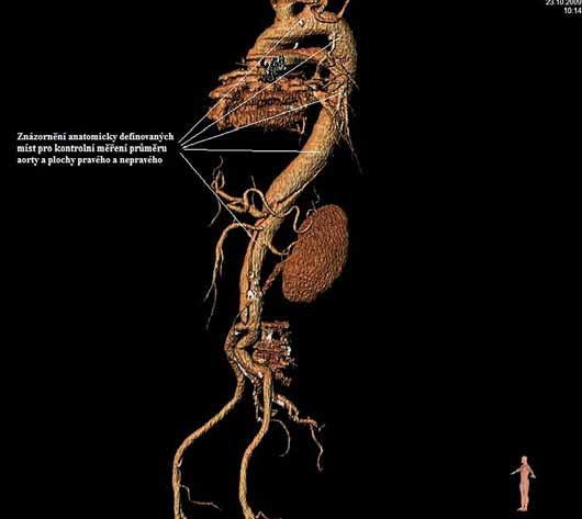 Znázornění anatomicky definovaných míst pro kontrolní měření průměru aorty a plochy pravého a nepravého kanálu direkce.