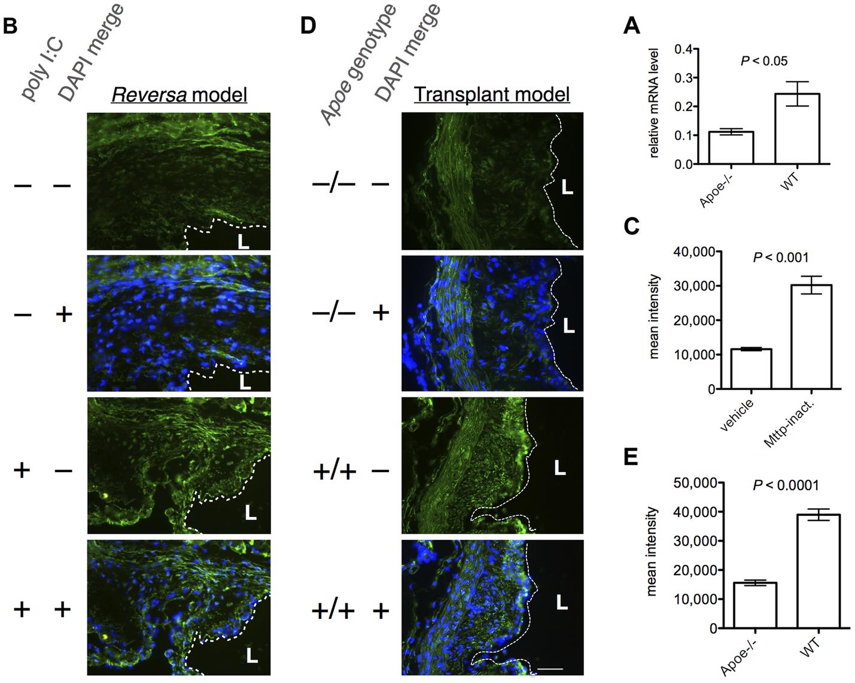 β-catenin expression is increased in regressing vs. progressing plaques, in both models of plaque regression.