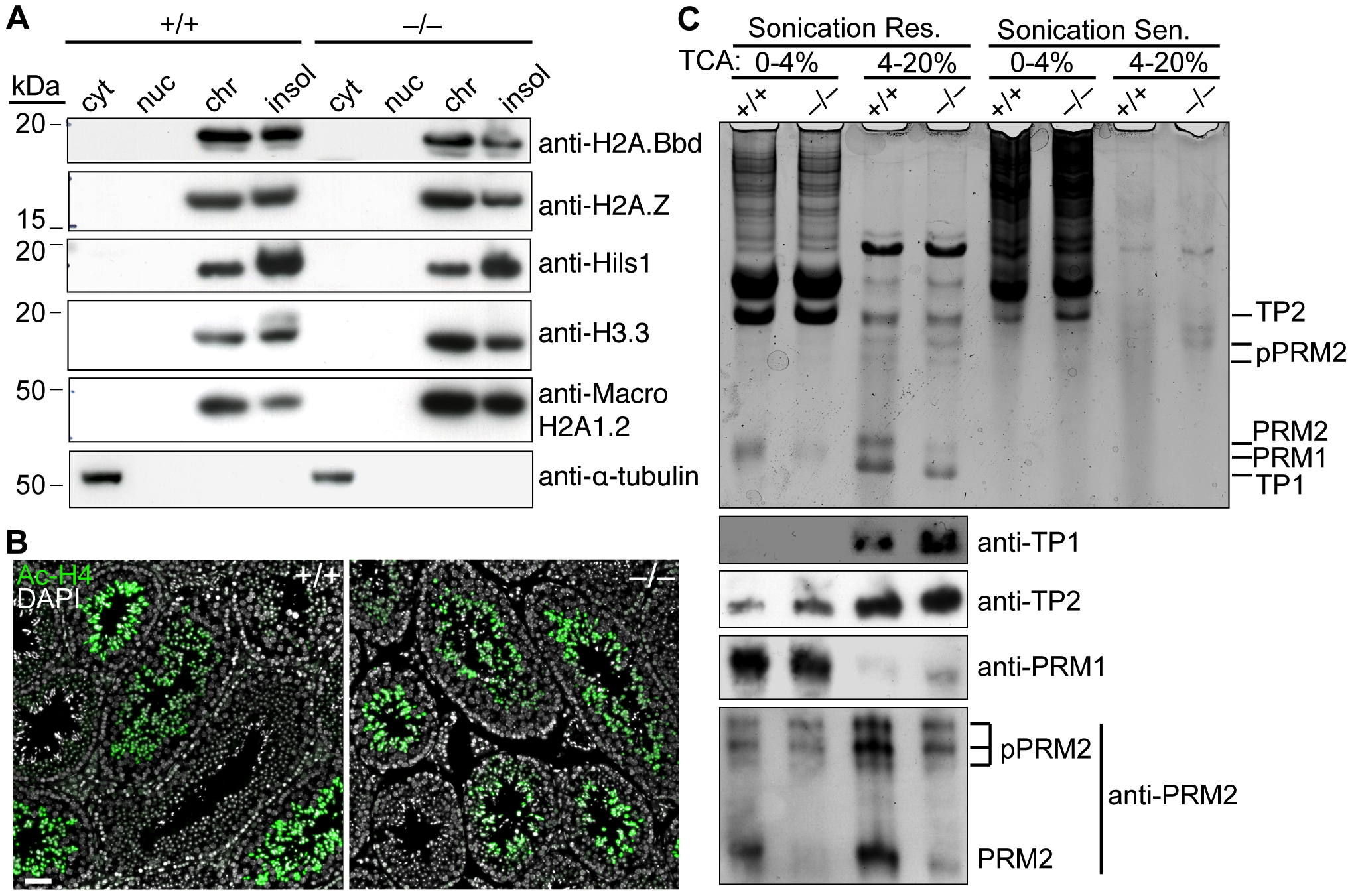<i>Baz1a</i> is dispensable for spermatogenesis-associated changes in chromatin protein composition.