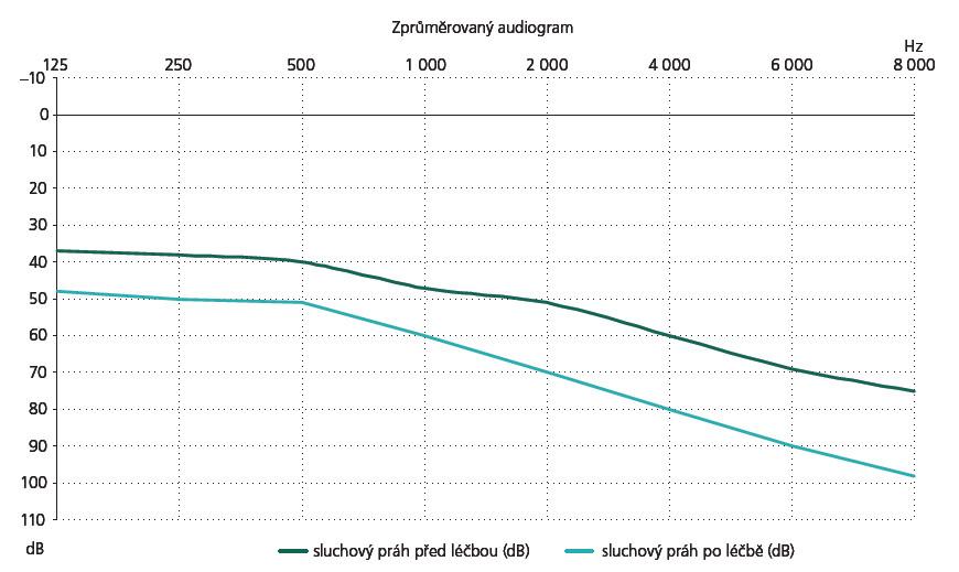 Zprůměrovaná křivka sluchového prahu v decibelech (dB) před a po radiochirurgii Leksellovým gama nožem.