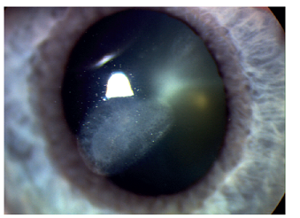 Stav po paracentrální ulceraci rohovky u pacienta s RA.