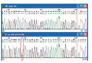 """Elektroferogramy zobrazujúce wild-type sekvenciu a """"hotspot"""" mutáciu v exóne 20 PIK3CA génu. Na obrázku sú uvedené čísla vzoriek a typ mutácie. Miesto mutácie je vyznačené."""