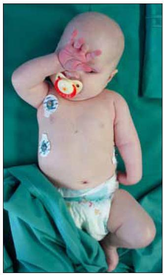 Addukce, vnitřní rotace, extenze a pronace levé horní končetiny při perinatální Erbově obrně.